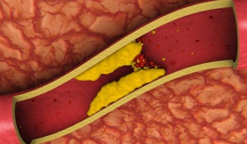 Colesterol en las venas