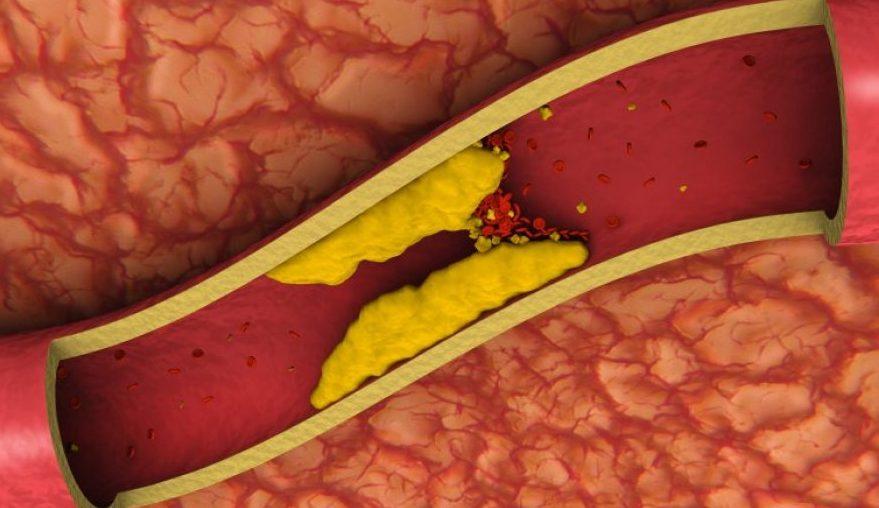 Los mejores alimentos para bajar el colesterol