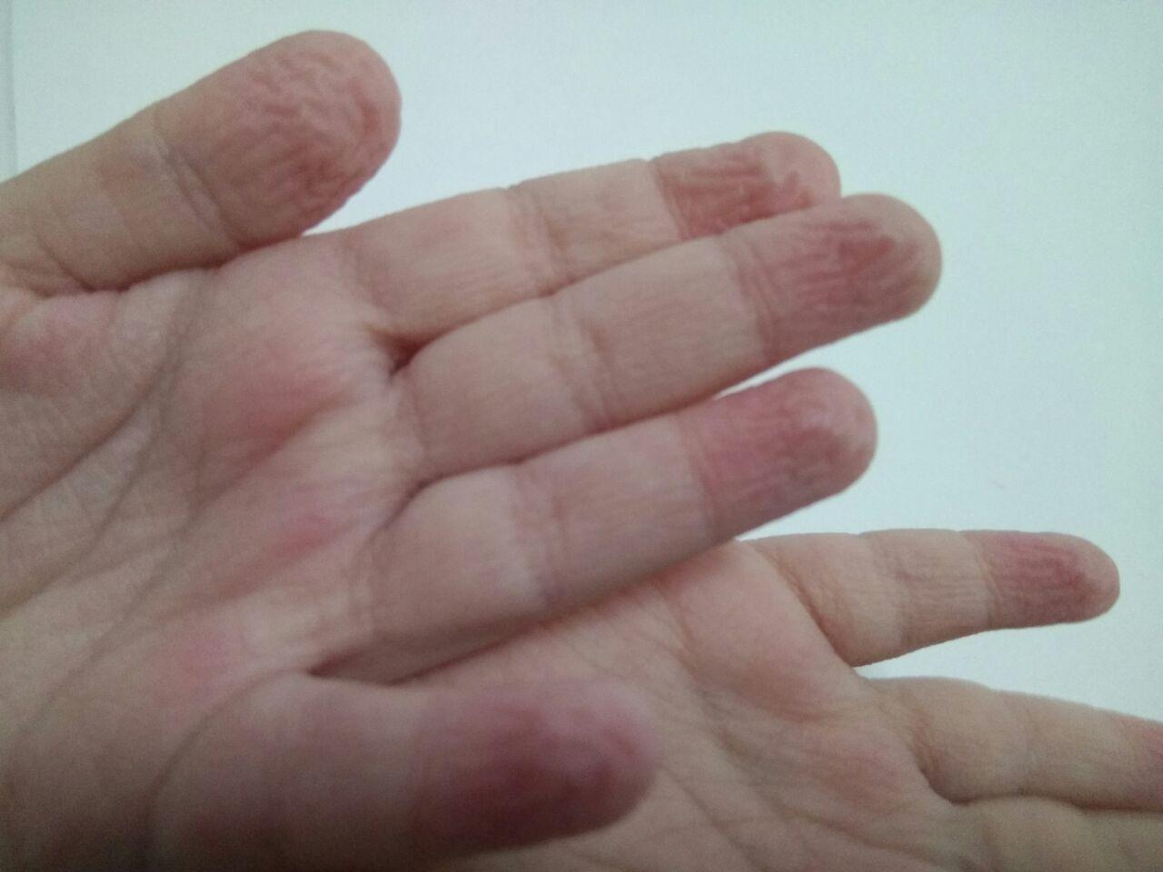 ¿Por qué se arrugan los dedos de las manos con el agua?