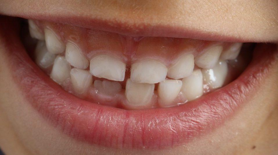 ¿El exceso de fluor puede manchar los dientes de los niños?