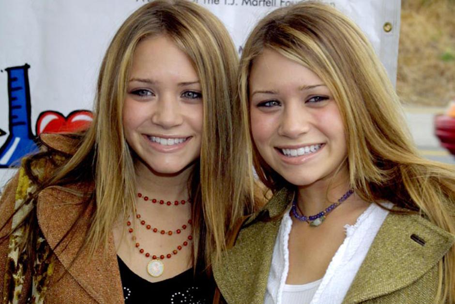 ¿Cuáles son las diferencias entre gemelos y siameses?
